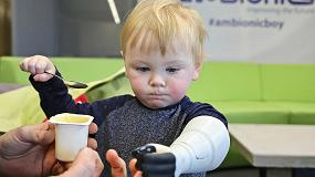 Foto de Un padre autodidacta desarrolla una prótesis hidráulica personalizada impresa en 3D para su hijo