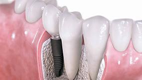Foto de Una nueva tecnología mejora los recubrimientos de implantes dentales
