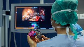 Foto de El Hospital de Burdeos mejora la cirugía de cáncer de riñón gracias a la impresión 3D a color