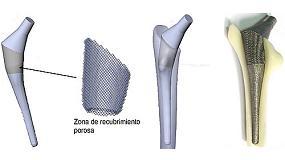 Foto de Fabricaci�n aditiva: presente y futuro de los implantes biom�dicos
