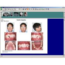 Software de tratamiento de imágenes