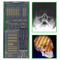 Sistemas de osteosíntesis