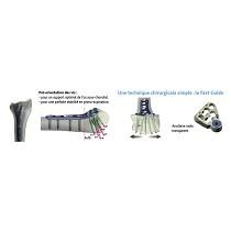 Sistema de osteosíntesis