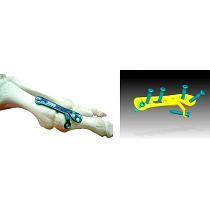 Placas de artrodesis