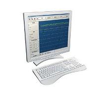 Software de procesamiento de ECG