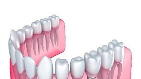 Foto de An�lisis de esfuerzos con elemento finito para optimizar el dise�o de implantes dentales