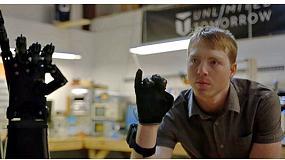 Foto de Unlimited Tomorrow, la nueva era de las prótesis ligeras y personalizadas impresas en 3D