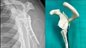 Foto de Fremap aplica la impresión 3D para el tratamiento de fracturas