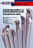 Barra de mandrinar antivibratoria