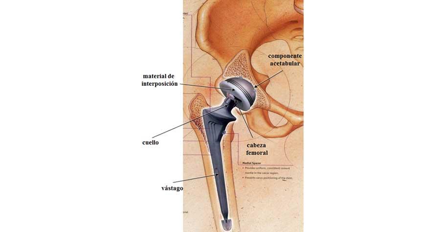 Biomateriales para el par articular de las prótesis de cadera ...
