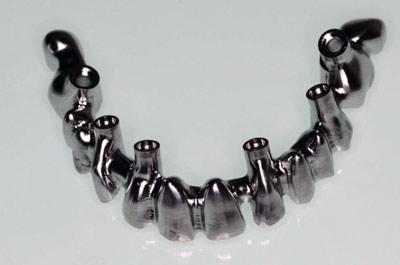 Mecanizado De Estructuras Dentales Metalmecánica
